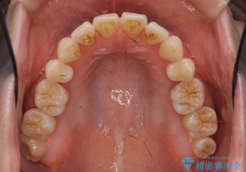 [[ インビザライン ライト ]]  下がってしまった歯ぐきを元に戻したいの治療前