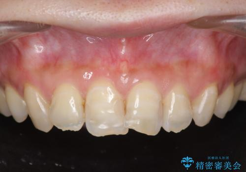 [[セラミック治療]]  溶けて形の悪くなった歯を改善したいの治療前