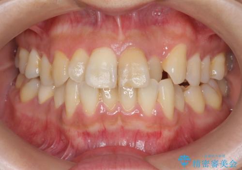 歯の変色 前歯の審美改善の治療前