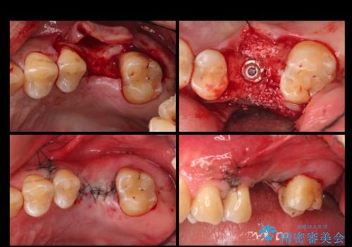 上の奥歯のインプラント、全体的な虫歯治療の治療中