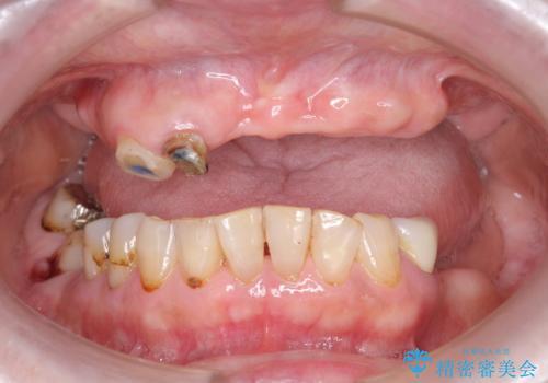 [[ 上顎多数歯欠損 ]]   インプラント・義歯を用いた補綴の治療前