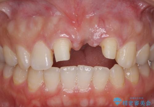 前歯のブリッジが気に入らない 歯肉移植術を併用した前歯のブリッジの治療中