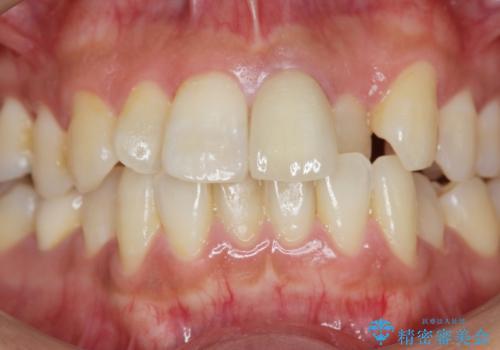 歯の変色 前歯の審美改善の治療後