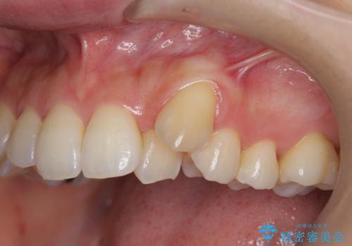 [[ 八重歯 ]] マウスピース部分矯正による改善の治療前