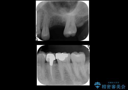 上の奥歯のインプラント、全体的な虫歯治療の治療前