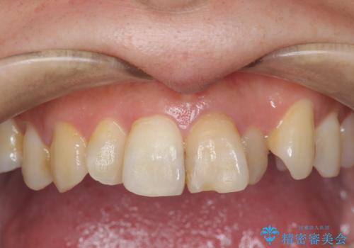 歯の変色 前歯の審美改善の症例 治療前