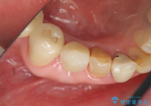 吸収した骨の再生 前歯部インプラント治療の治療後