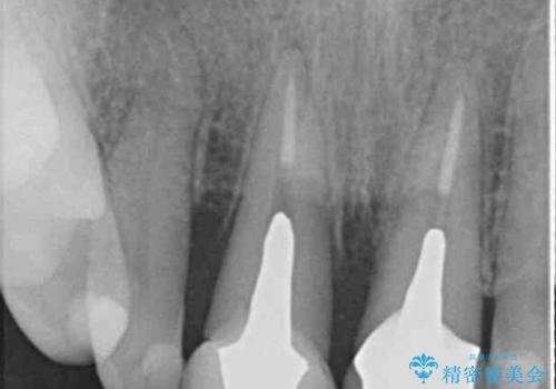 折れてしまった前歯 オールセラミックブリッジで自然な口元にの治療前