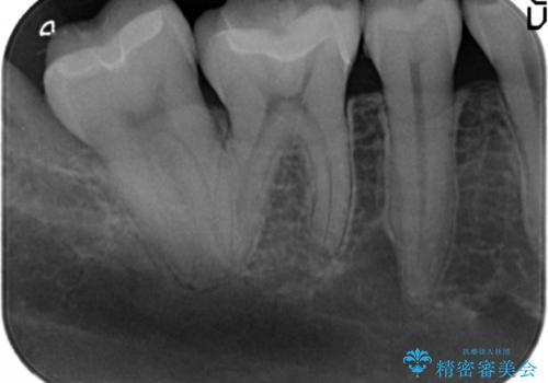 笑った時に見える銀歯を白くしたいの治療後