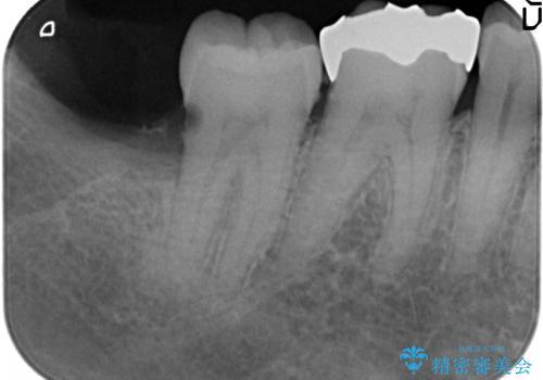 PGA(ゴールド)インレー 深い虫歯の治療の治療前