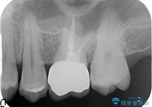 オールセラミッククラウン 急に痛み出した奥歯の治療の治療後