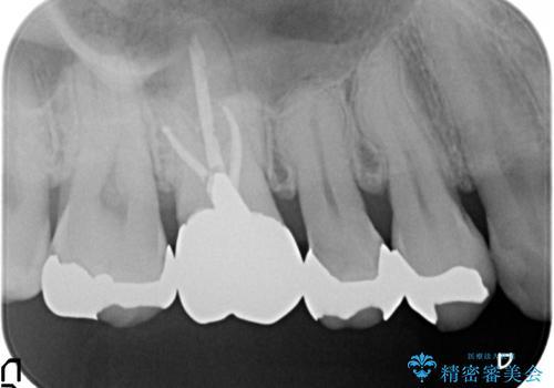 オールセラミッククラウン ズキズキ痛む歯の治療の治療前