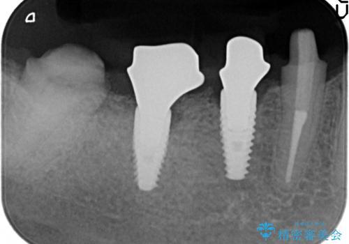 インプラント 抜歯になってしまった歯の補綴の治療中