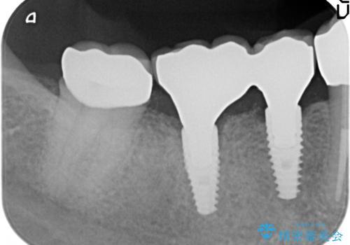 インプラント 抜歯になってしまった歯の補綴の治療後