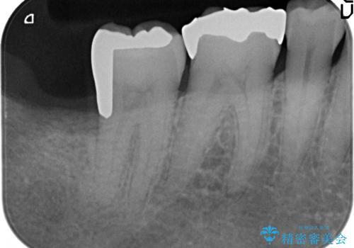 PGA(ゴールド)インレー 深い虫歯の治療の治療後