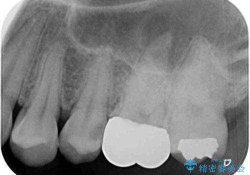 目立つ銀歯を治したい 奥歯のむし歯治療の治療前