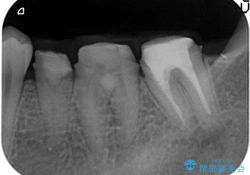深い虫歯 歯周外科を併用した精度の高い補綴治療の治療中