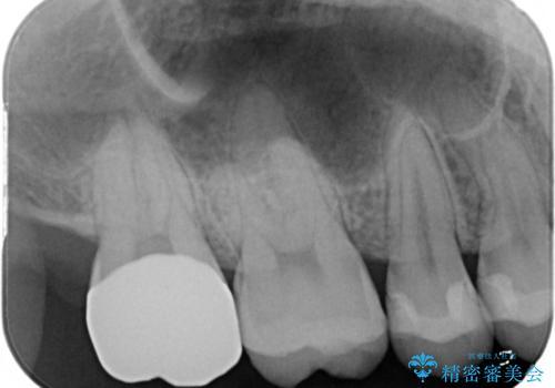 広範囲にわたる虫歯をセラミックで治療の治療後