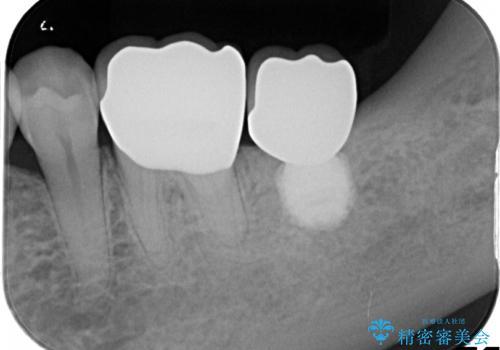 失った歯のインプラントでの咬合回復の治療後