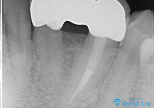 オールセラミッククラウン 矯正で綺麗に並ばなかった前歯の補綴の治療後