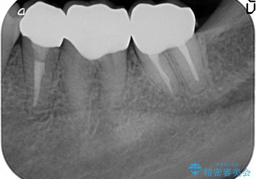 深い虫歯 歯周外科を併用した精度の高い補綴治療の治療後