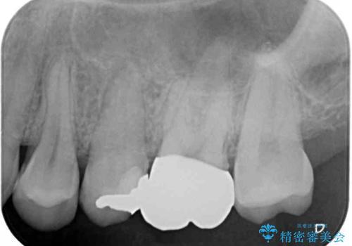 目立つ銀歯を治したい 奥歯のむし歯治療の治療後