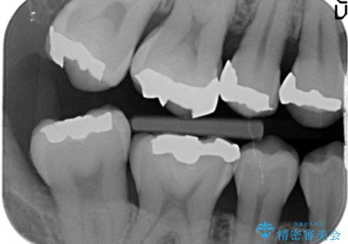 笑った時に見える銀歯を白くしたいの治療前