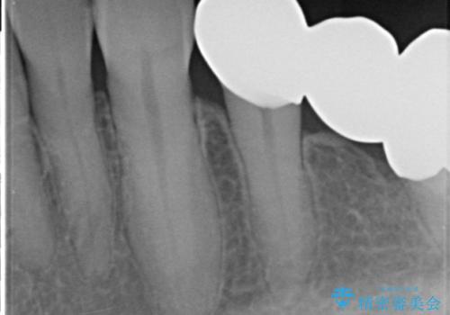 どうしても抜歯したくない 歯根分割術・骨外科手術で歯を残す 50代女性の治療後