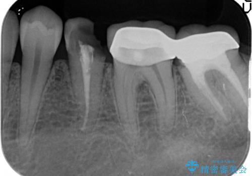 深い虫歯 歯周外科を併用した精度の高い補綴治療の治療前