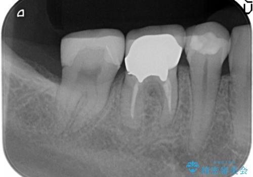 オールセラミッククラウン 他院にて抜歯を勧められた歯の治療の治療前