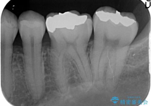 見える銀歯を白くの治療前