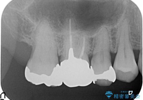 オールセラミッククラウン 銀歯と歯茎の隙間が気になるの治療前