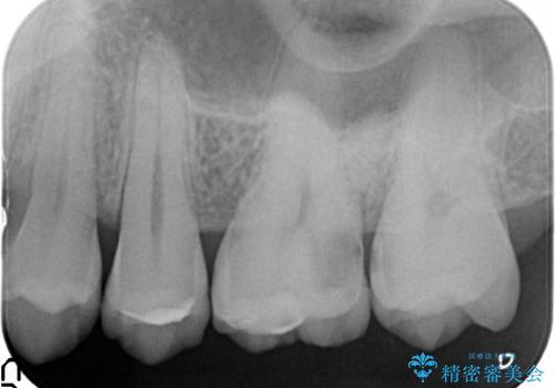 オールセラミッククラウン 急に痛み出した奥歯の治療の治療前