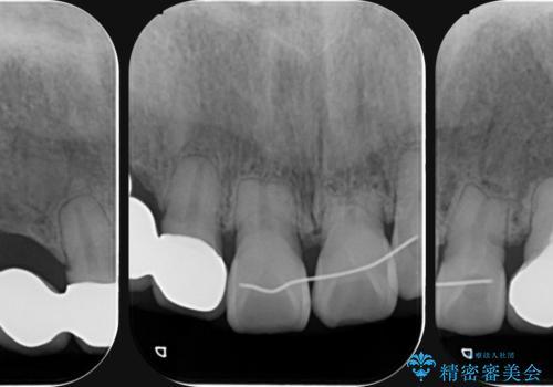 [[ 前歯に見られた吸収像  ]]セラミックブリッジ製作の治療後