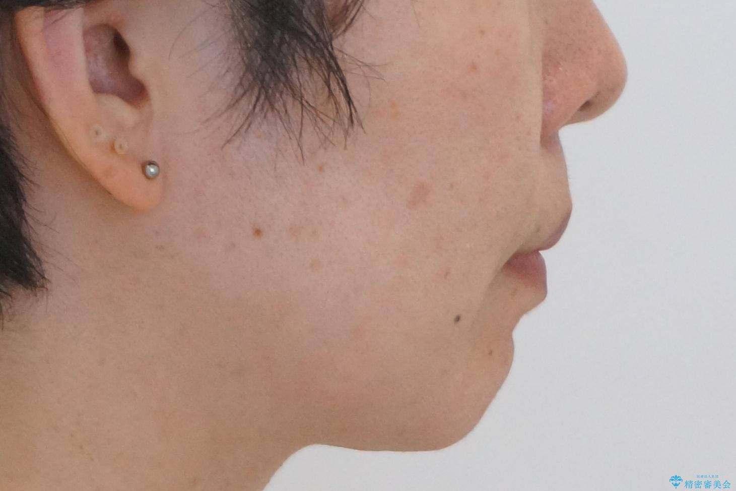 前歯のがたつき インビザラインで抜歯矯正の治療後(顔貌)