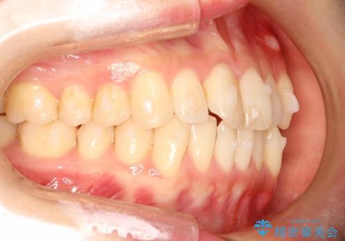 前歯のガタガタをインビザラインで目立たず矯正の治療中