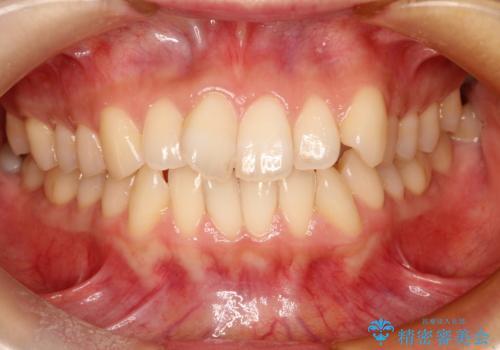 前歯のガタガタをインビザラインで目立たず矯正の治療前