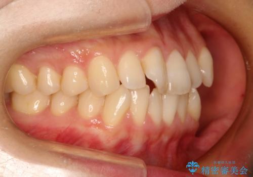 前歯のガタガタをインビザラインで目立たず矯正の症例 治療前