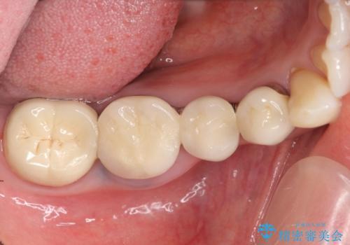 インプラント 抜歯になってしまった歯の補綴の治療前