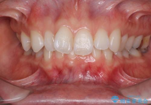 深い咬み合わせと奥歯のむし歯 総合歯科治療の症例 治療前