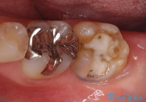 深い咬み合わせと奥歯のむし歯 総合歯科治療の治療前