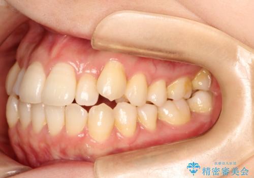 インビザラインで八重歯の矯正の治療前