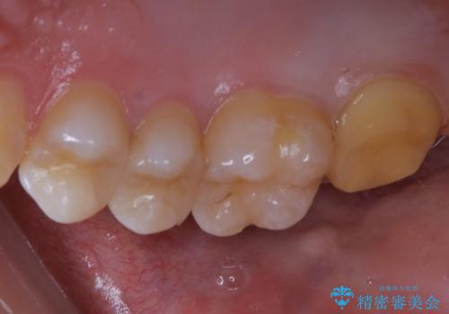 広範囲にわたる虫歯をセラミックで治療の治療中