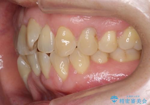 前歯のがたつき インビザラインで抜歯矯正の治療前