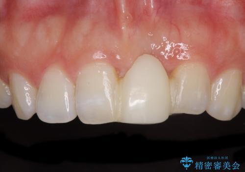 前歯のブリッジが気に入らない 歯肉移植術を併用した前歯のブリッジの症例 治療前