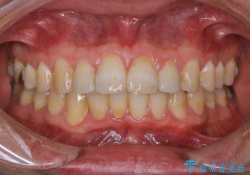 PMTC 歯科衛生士による専門的クリーニングの治療前