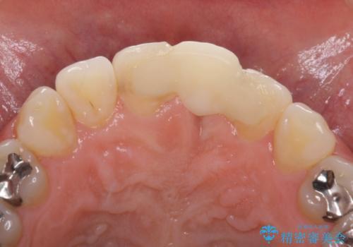 前歯のブリッジが気に入らない 歯肉移植術を併用した前歯のブリッジの治療前