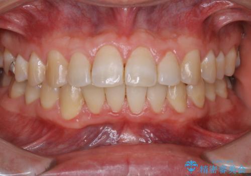 PMTC 歯科衛生士による専門的クリーニングの治療後