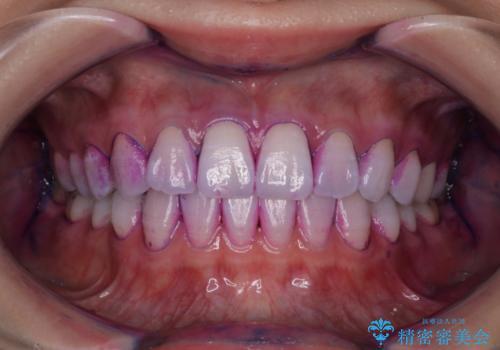 定期的に歯科医院でクリーニング PMTCの治療前
