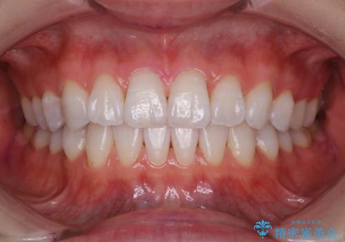 定期的に歯科医院でクリーニング PMTCの治療後